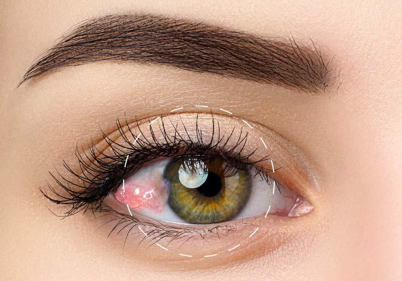 ¿Cómo eliminar la carnosidad en los ojos?