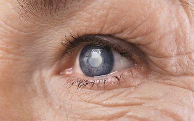 ¿Cuál es la importancia de atender el Glaucoma a tiempo?