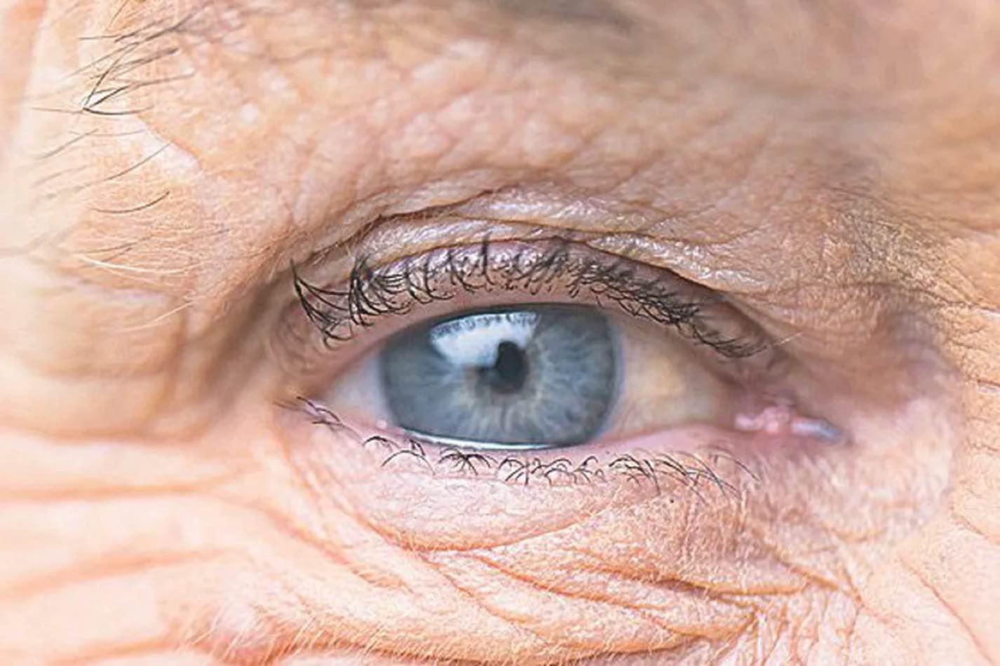que es cataratas en los ojos